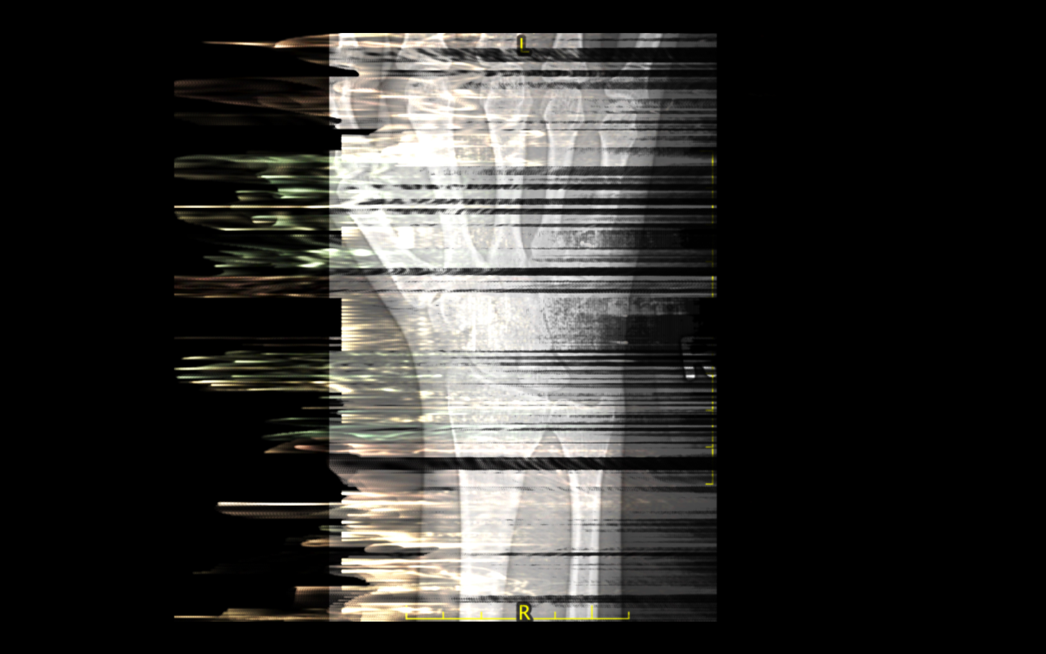 Digital art image of hand x-ray distorted through image processing